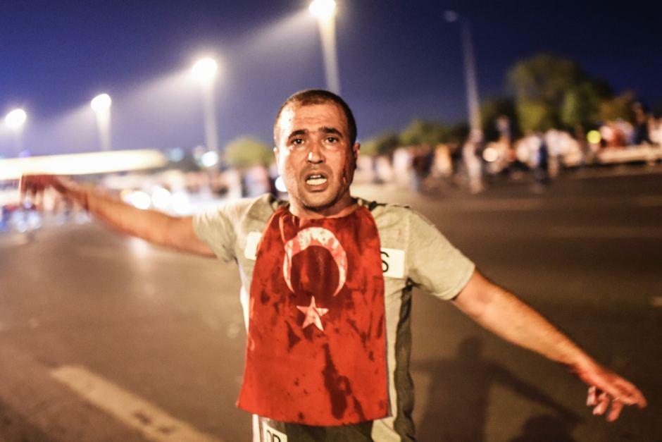 man_blood_turkish_coup1